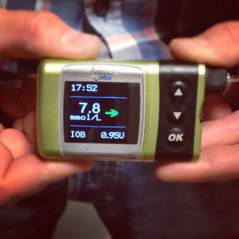 Animas Vibe r en ny insulinpump som tillsammans med en sensor visar en trend ver hur blodsockret ligger
